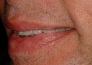 Left lateral view of patient's smile.