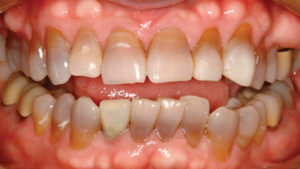 Frontal view of patient's smile showing damaged teeth and repair work with Renamel hybrid composite resin (Cosmedent Inc.).