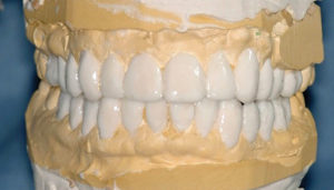 Patient's diagnostic wax up with all esthetic and functional considerations corrected and mounted on SAMIII articulator (Great Lakes Orthodontics).