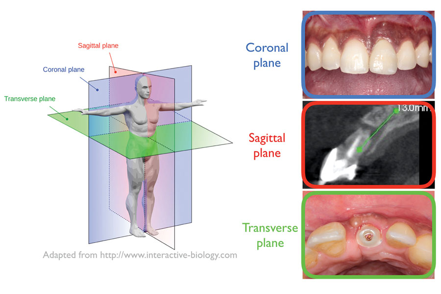 Three planes of space to consider in a crown-down surgery approach. Implant shoulder should be 2mm apical to the CEJ/facial gingival margin of the neighbouring teeth.