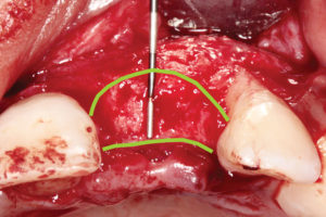 Scalloping of osteotomy site.