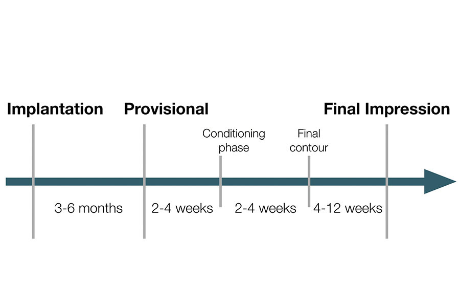 Timing of implant provisionalization.