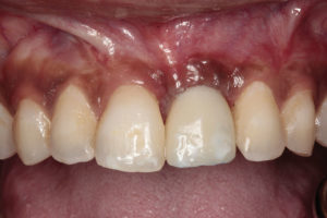 Provisional implant crown inserted and adjusted out of occlusion.