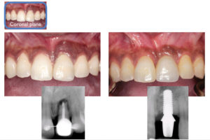 Preserving papilla height by maintaining interproximal bone post-treatment.
