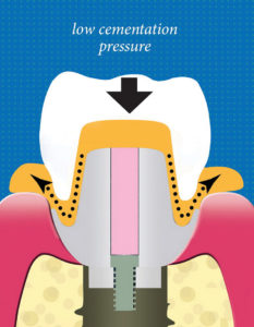An illustration that shows the movement of excess cement during crown installation. The margin of the abutment and the crown form a nozzle that redirects cement out of the tissue spaces.