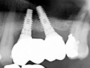A cropped x-ray image of the solid zirconia bridge cemented onto the custom abutments shown in Figure 9. These abutments were already attached to the implants shown in Figure 8 by abutment screws.