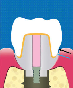 Illustration that shows the inflected margin of the abutment and crown (blue arrow). The crown shape in the subgingival portion (black arrow) allows excess cement to flow out of the gingival space. The small horizontal bumper (0.15mm) pushes the gingiva away from the crown surface.