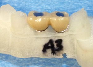 Shows two splinted crowns installed by the screw-in technique on the same model as in Figure 4. Blue acrylic has been used to fill the crown access holes to the abutment screw. Abutment screw access holes can be created by drilling through the top of the acrylic plugs over the screw access channels.