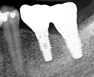 A peri-apical x-ray image the splinted crowns from Figure 4 in place on their retaining implants. This prosthesis has been cemented into the oral environment and is retrievable.