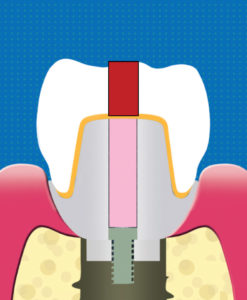 A cross-sectional illustration of a single retrievable crown with screw access hole filled with acrylic (red rectangle) during installation by intra-oral cementation. This screw access hole can be opened to allow for removal of the crown and its reinstallation after ensuring that all viable excess cement has been removed. This is part of the Svoboda Modification process.