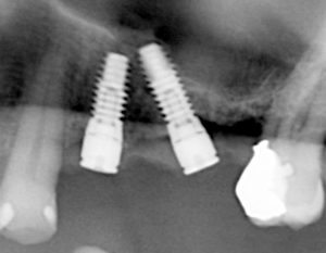 A cropped x-ray image of two implants in proximity of the maxillary sinus. The implant adjacent to the sinus cavity is angled to avoid the sinus space and to take advantage of available bone.