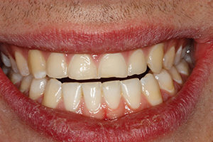 Prior to final polishing of the composite restorations, the patient was equilibrated ensuring bilateral equal intensity simultaneous contacts in CO. This left the patient with an anterior open bite