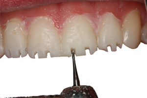 To be as conservative as possible, the preparation was started through the bisacryl allowing us to minimize the reduction necessary while satisfying the minimum dimensions required for material thickness