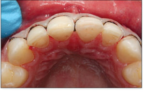 An algorithm discussed in a previous article was used to determine the most appropriate prep design.5 Thin gingival retraction cord allowed for predictable impressions