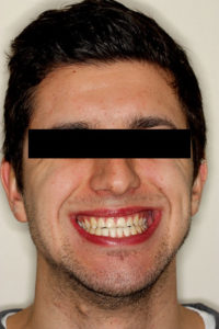 Aesthetically, he is high risk to treat as this was his chief concern. As well, he displays high lip dynamics fully exposing the periodontium in a full smile