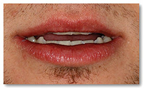 The aesthetics prognosis is good. With lips in repose, very little of his maxillary incisors are displayed due to the severe nature of his wear