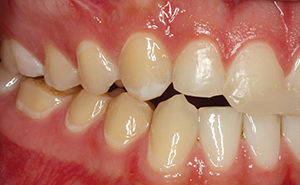 Once the worn cusps in the posterior dentition are restored, sufficient restorative space will be established to provide the patient with conservative porcelain veneers to restore the maxillary incisors
