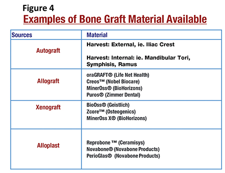 Examples of Bone Graft Material Available