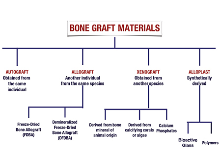 Biomaterials In Implant Dentistry
