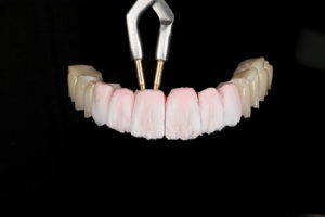 Zirconia frame with first layer of porcelain.