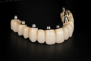 Lateral view of final maxillary prosthesis.