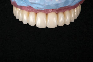 Frontal view of final maxillary prosthesis.