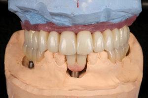 Frontal view of maxillary and mandibular restorations (except mandibular veneers).