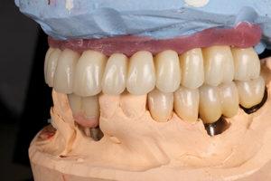 Lateral view of maxillary and mandibular restorations.