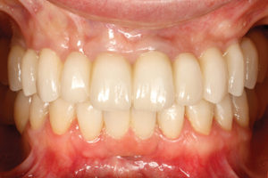 Frontal view of final restorations at delivery in maximum intercuspation.