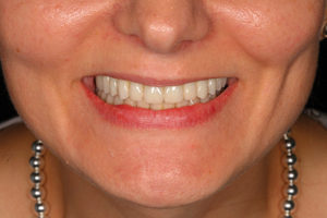 Smile photo of patient with final restorations.