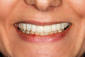 Smile photo of acrylic provisionals after shortening incisal length.