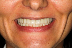 Smile photo of milled PMMA provisionals.