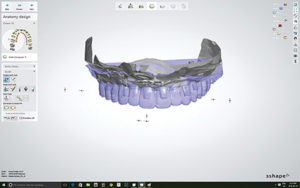 Frontal view of 3Shape virtual planning showing implant location.