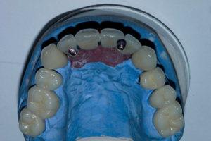 Phase 3: Maxillary arch insertion