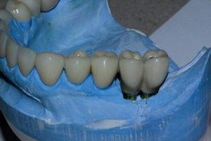 Phase 5: Mandibular insertion