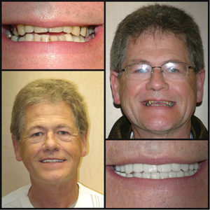 The patient's final result was very pleasing to both himself and his wife