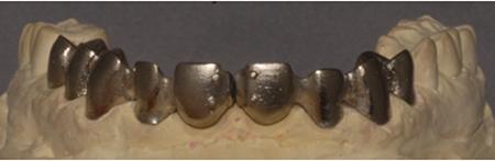 Porcelain-Fused-to-Metal (Precious), framework ready for soldering (LHM Dental Studio Ltd.)