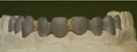 Porcelain-Fused-to-Metal (Precious), framework soldered and abraded (LHM Dental Studio Ltd.)