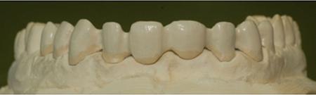 Porcelain-Fused-to-Metal (Precious, framework opaqued (LHM Dental Studio Ltd.)