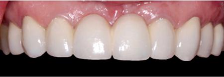 Porcelain-Fused-to-Metal (Precious) (LHM Dental Studio Ltd.)