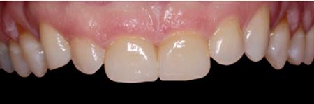 High-Leucite Glass Ceramic, teeth 11, 21 (LHM Dental Studio Ltd.)