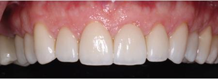 Lithium Disilicate, teeth 16-26 (LHM Dental Studio Ltd.)