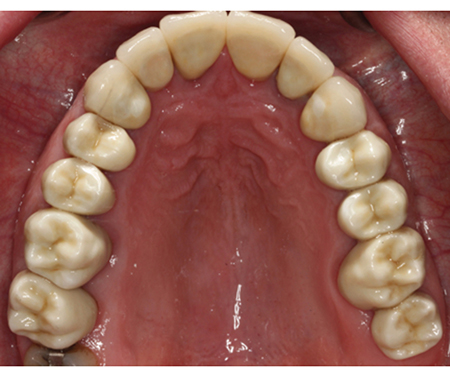Monolithic Zirconia, teeth 17-14, 24-27 (LHM Dental Studio Ltd.)
