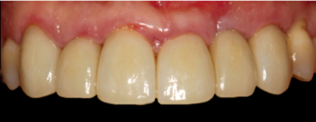 Porcelain-Fused-to-Zirconia, teeth 13-23 (LHM Dental Studio Ltd.)