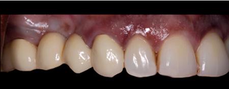 Porcelain-Fused-to-Metal (Non-Precious), teeth 13-16 (LHM Dental Studio Ltd.)