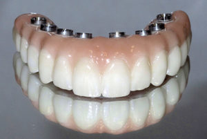 At the lab, a full contour zirconia fixed implant supported prosthesis is fabricated following the size and shape of the provisional prosthesis, as shown in the clear duplicate. This final prosthesis is made with access holes that correspond to the location of the implants and is screw-retained