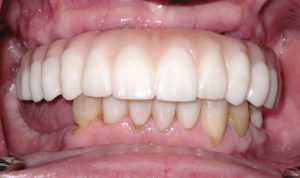 The PMMA provisional was removed and the zirconia fixed implant supported prosthesis was inserted at this appointed