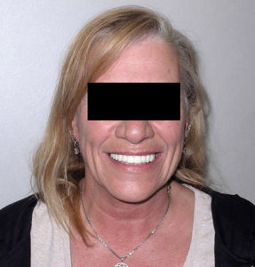 The occlusion was verified and the patient was given post-insertion care instructions. The patient was very pleased with the esthetic and phonetic result