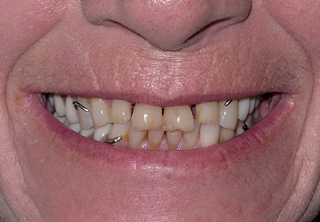 Various treatment options were presented to the patient and the patient elected to proceed with a full-arch implant supported prosthesis for his maxilla