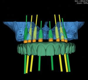 Using this information, the information is then digitized and a digital treatment plan is created (Fig. 2). In this way, the dentist and patient are able to visualize the outcome prior to surgery and make any minor changes that may be required or anticipate any challenges ahead of the procedure.